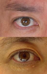 Eye070116